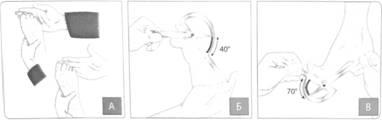 Отводная контрактура левого тазобедренного сустава крем - бальзам суставит