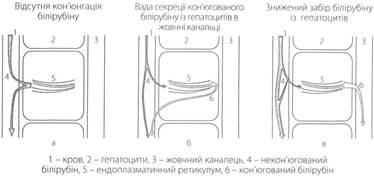 Патогенез синдрома: а) Криглера-Найяра 1 типа;  б) Дабина-Джонсона  в) Жильбера