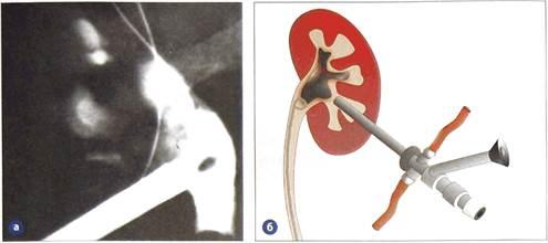 Перкутанная нефролитолапаксия (нефролитотрипсии): а - антеградная пиелография с нефроскопом;  б - схема нефролитолапаксии