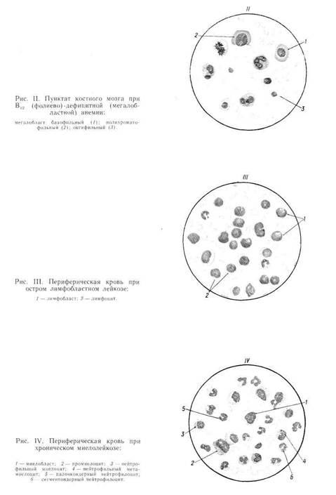 Лечение анемии при раке желудка
