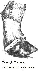 Артроз копытного сустава грудной конечности dash капсулы для суставов